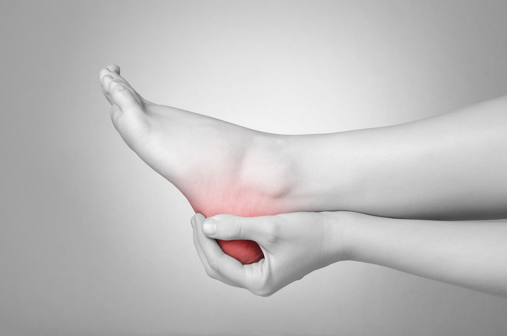 Natural Remedies for Plantar Fasciitis